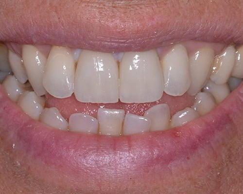 FINAL SMILE E1561113749937 Scaled 1